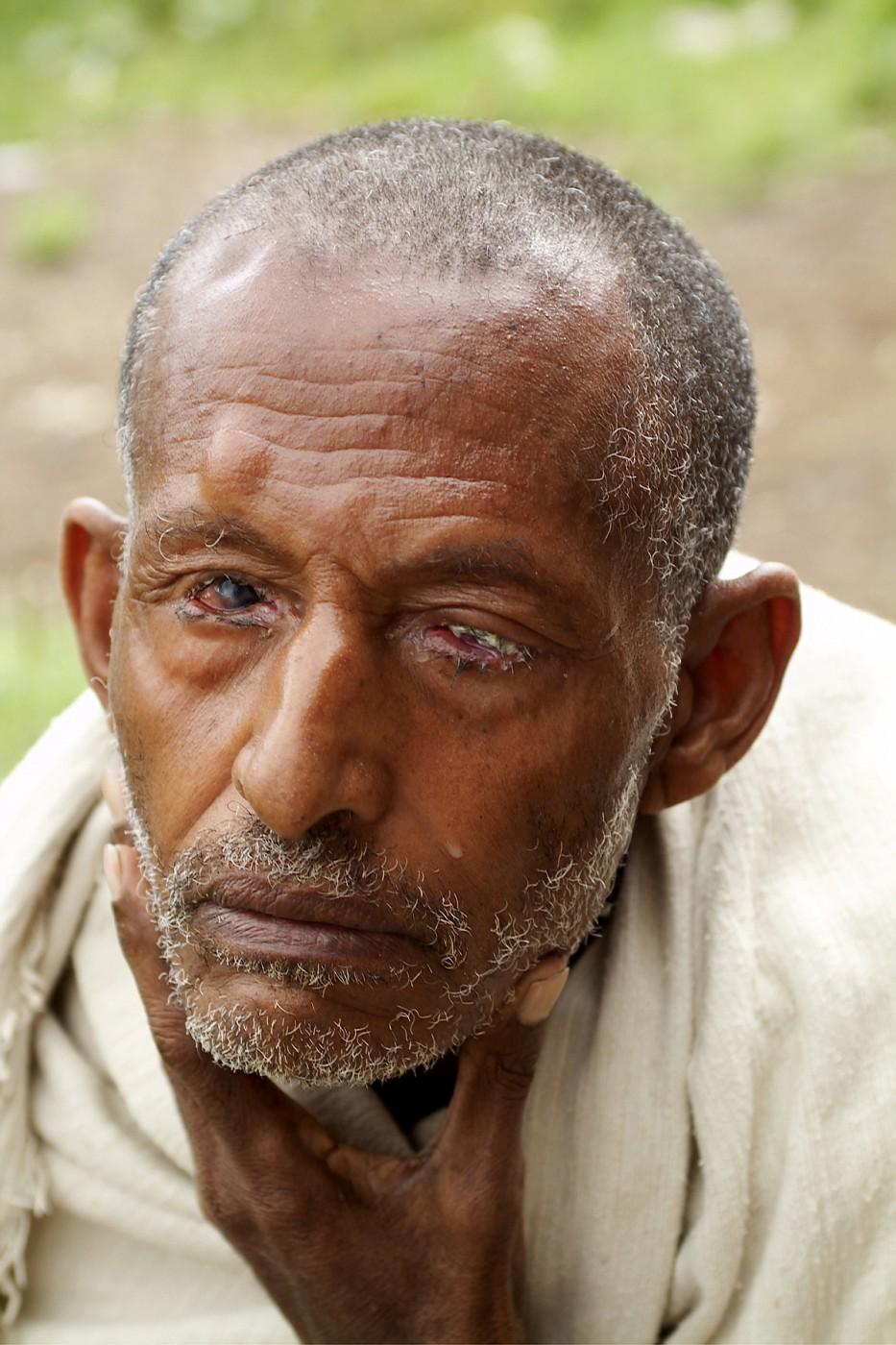 13 old man trachoma